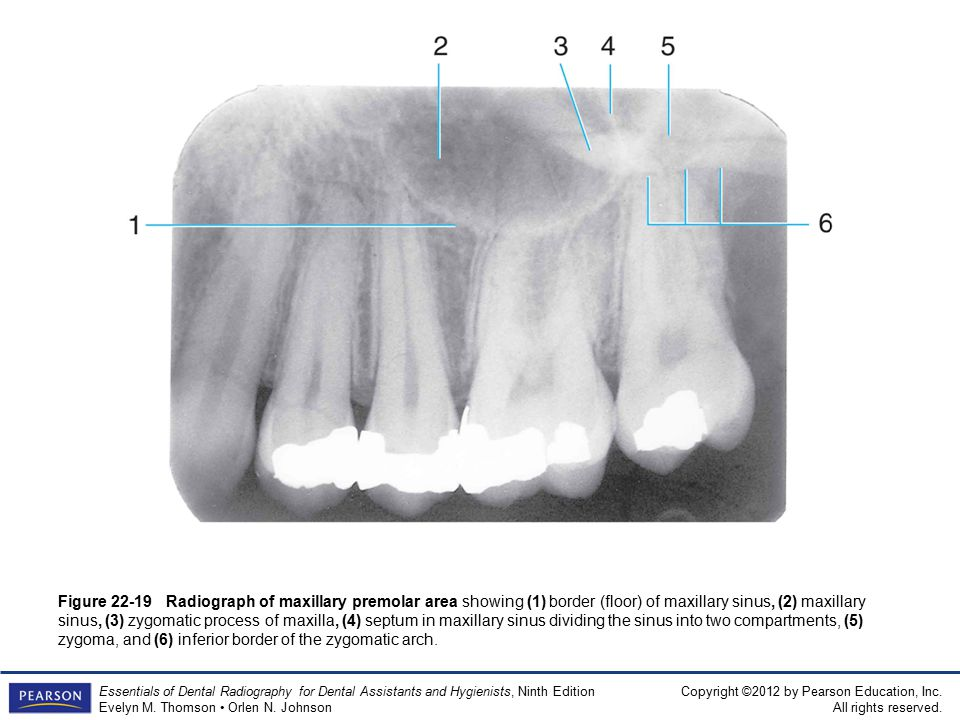 Floor Of Maxillary Sinus Radiography | TheFloors.Co