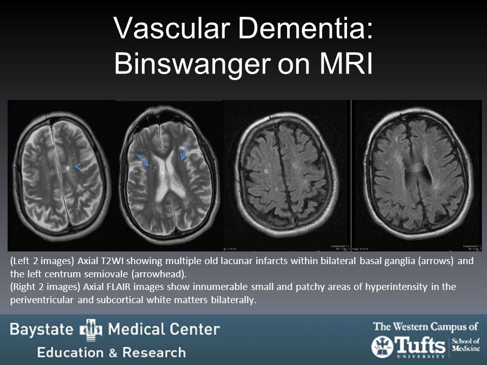 Unforgettable images: A multimodality pictorial review of dementia ...