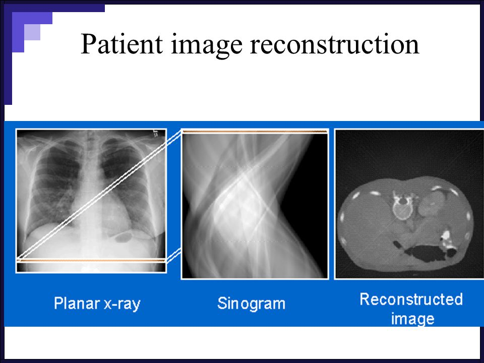 Patient image reconstruction