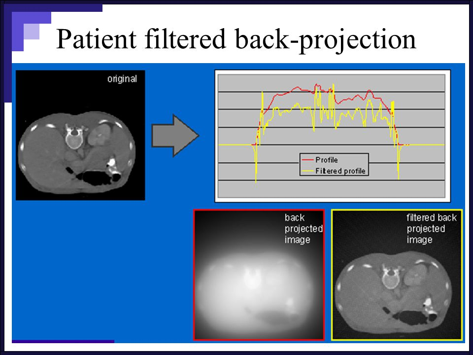 Patient filtered back-projection