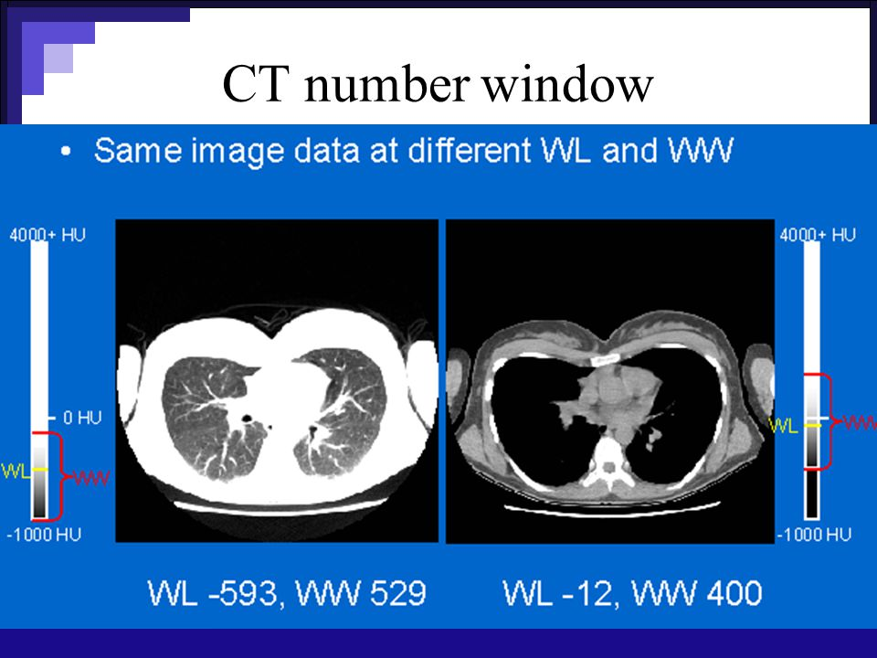 CT number window