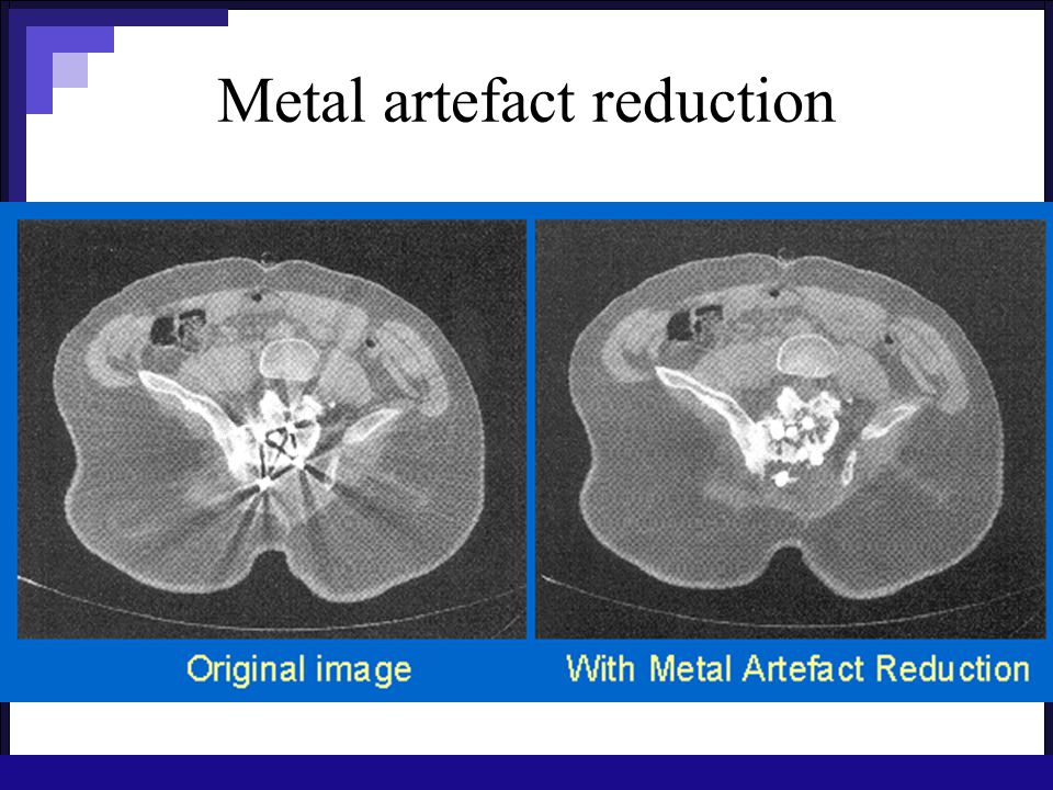 Metal artefact reduction