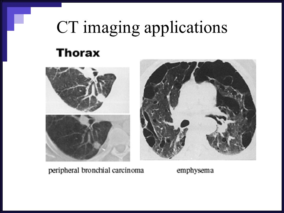 CT imaging applications