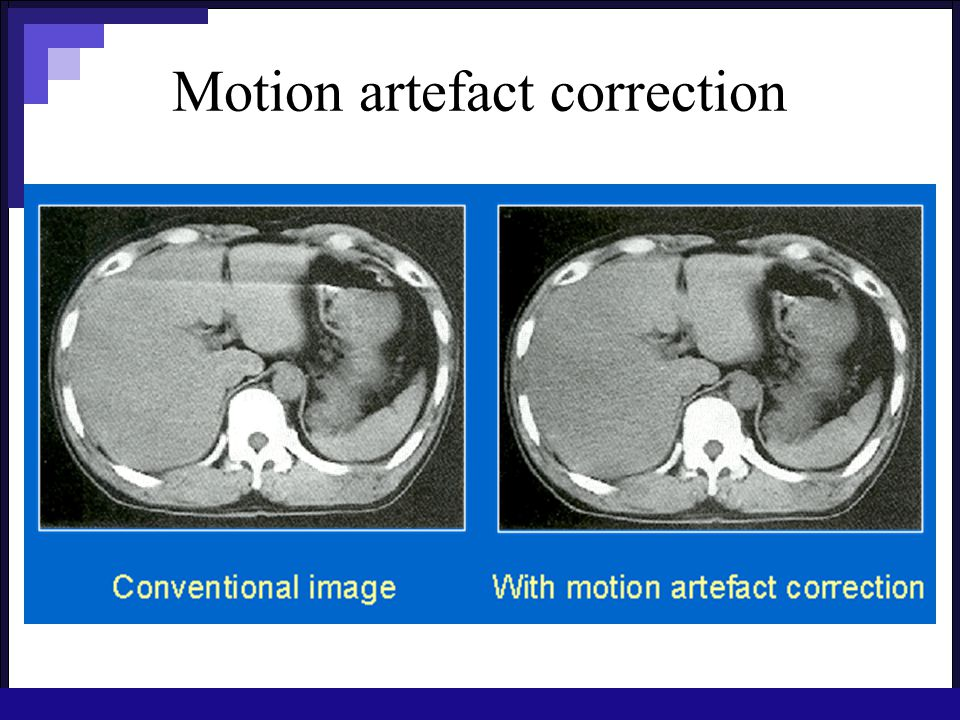 Motion artefact correction