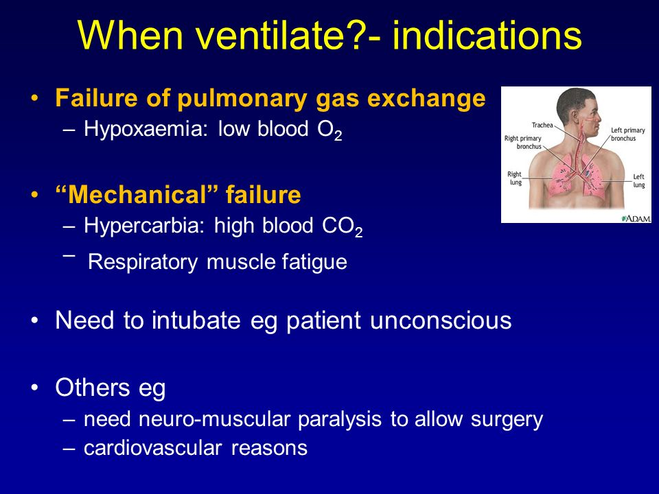 When ventilate - indications
