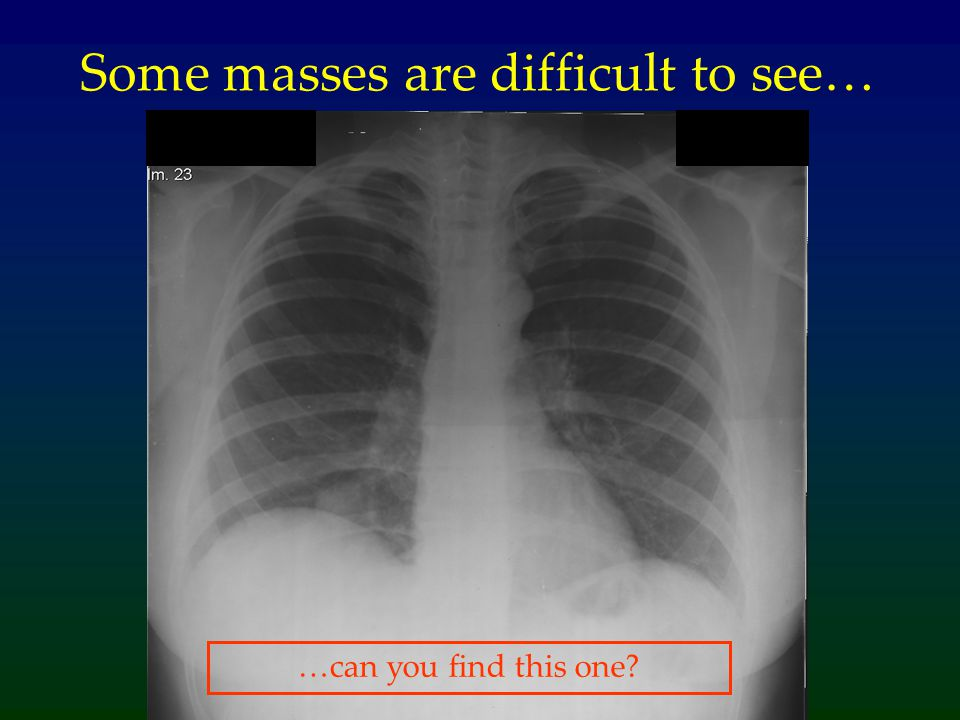 Some masses are difficult to see…