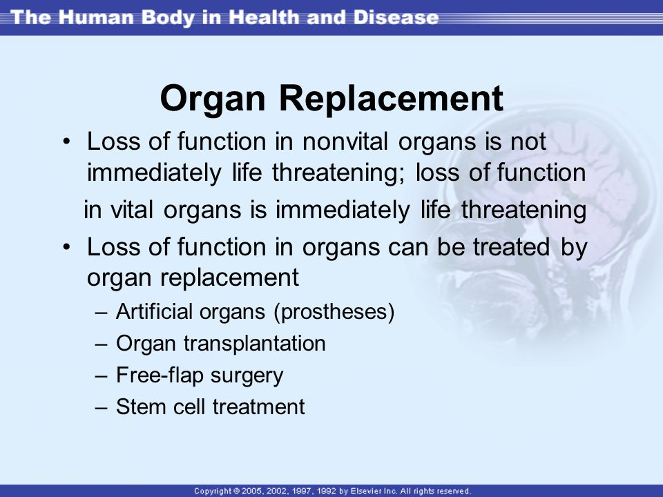 Organ Replacement Loss of function in nonvital organs is not immediately life threatening; loss of function.