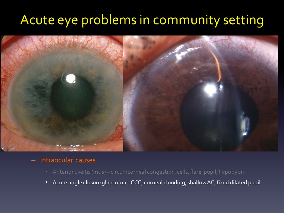 Ophthalmology Update Ajay Bhatnagar Consultant Ophthalmologist Ppt