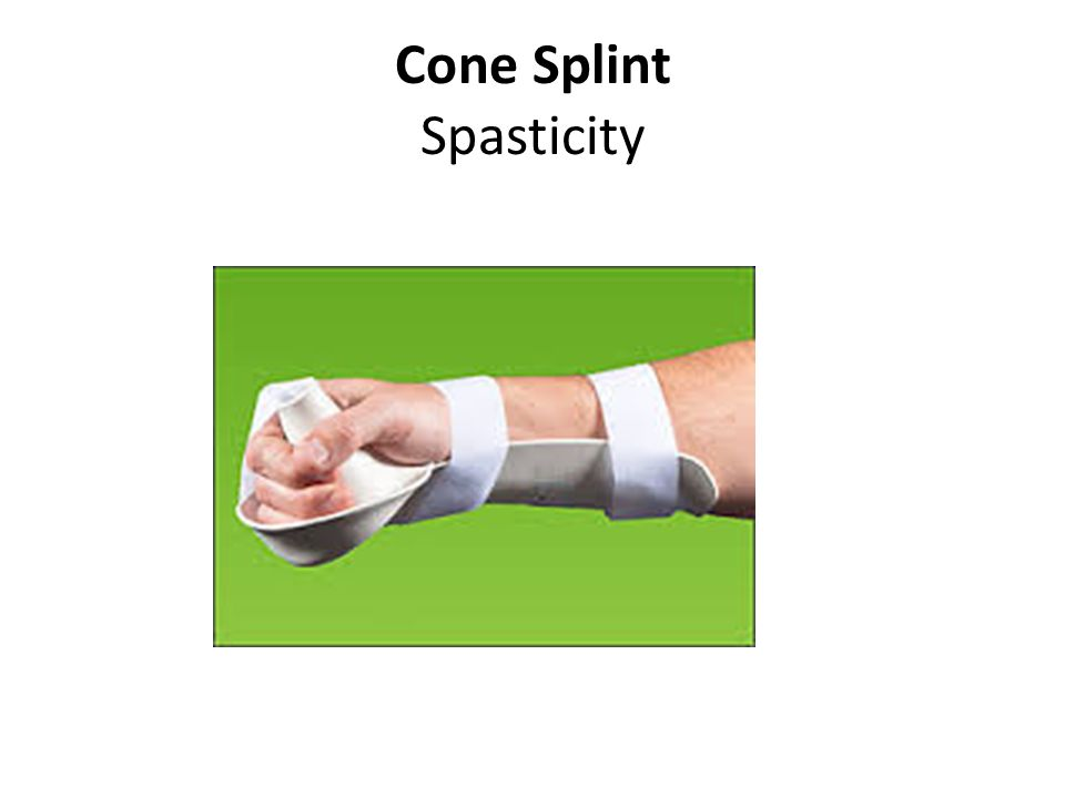 how to make a cone splint