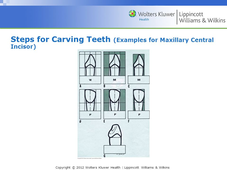 Chapter 13 Guidelines For Drawing Sketching And Carving Teeth