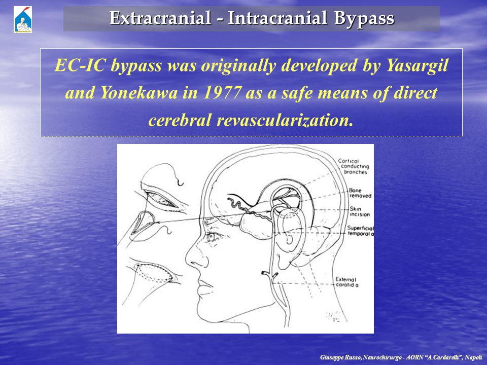 Extracranial - Intracranial Bypass