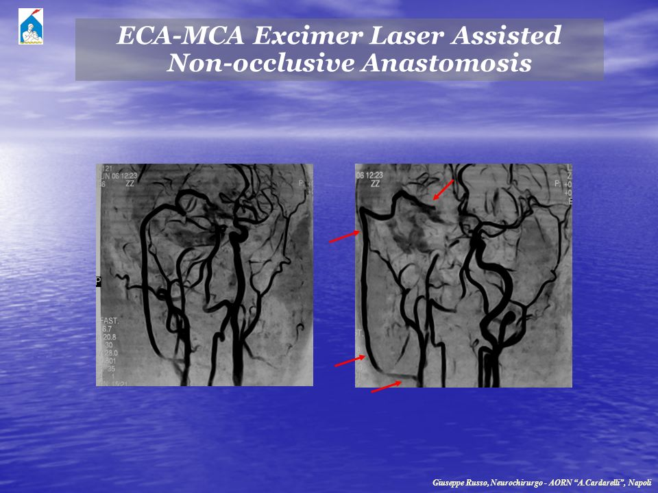 ECA-MCA Excimer Laser Assisted Non-occlusive Anastomosis