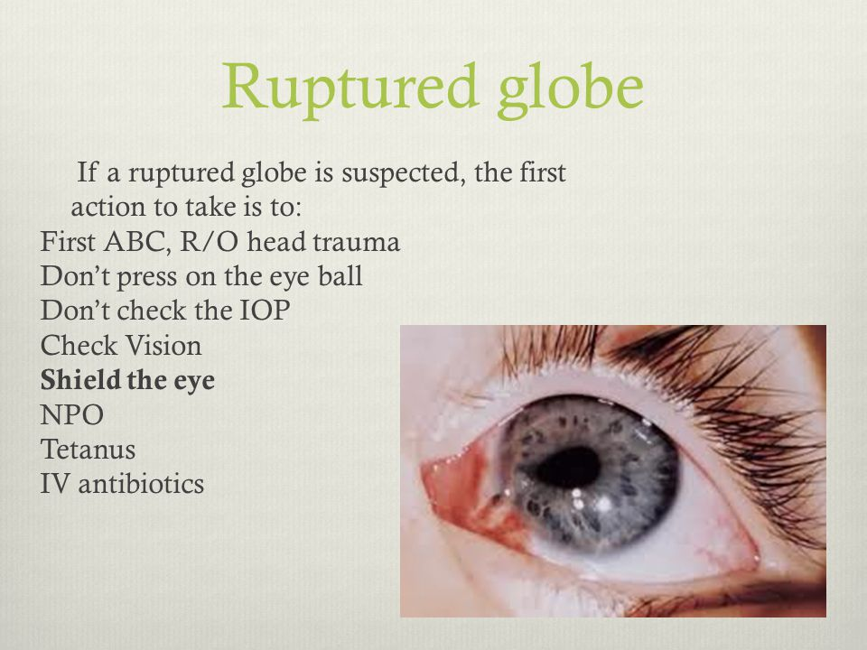 ruptured globe images - 960×720