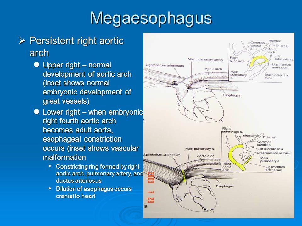 97 megaesophagus persistent