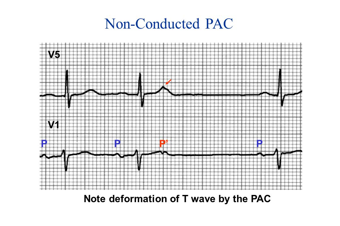 Nonconducted Premature Atrial Contractions