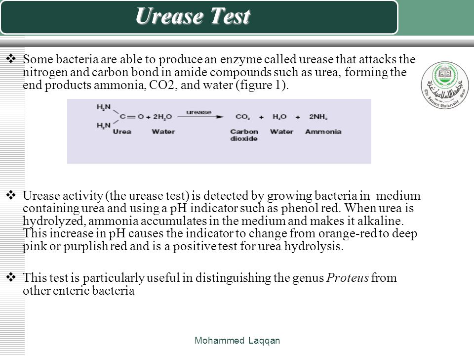 Urease Test