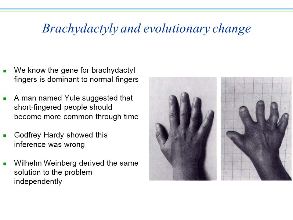 Brachydactyly and evolutionary change