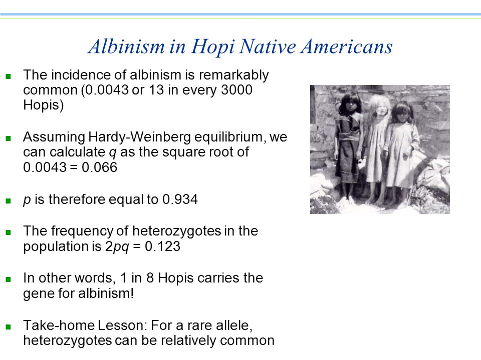 Albinism in Hopi Native Americans