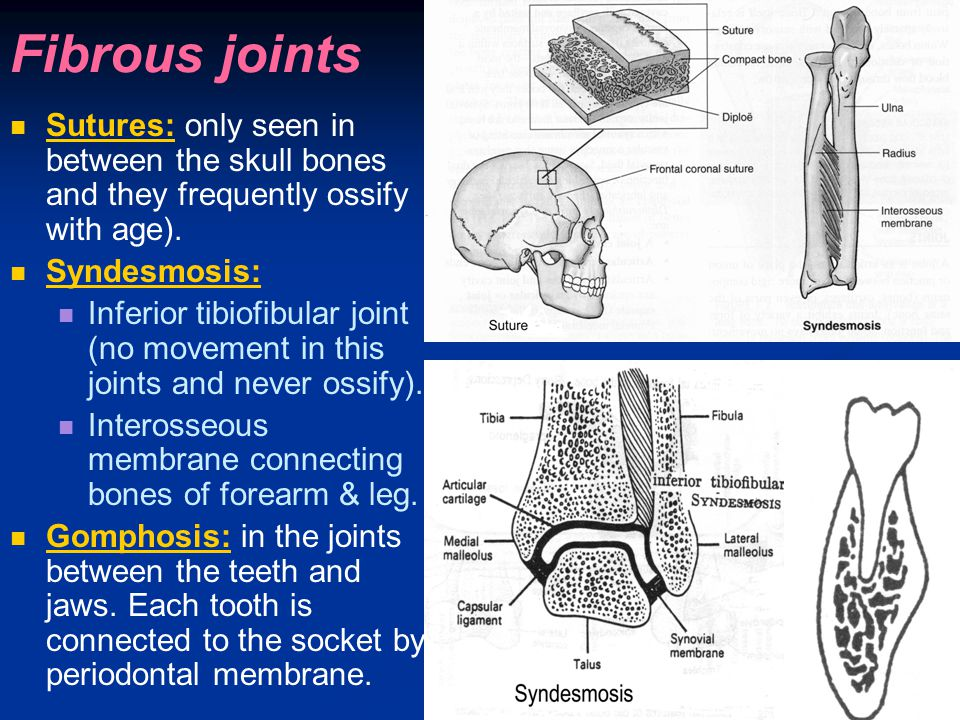 Fibrous joints Sutures: only seen in between the skull bones and they frequently ossify with age). Syndesmosis: