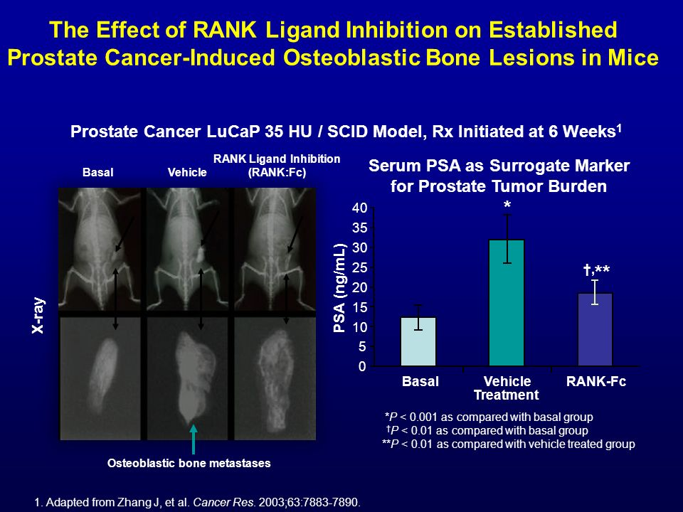The Effect of RANK Ligand Inhibition on Established Prostate Cancer-Induced Osteoblastic Bone Lesions in Mice