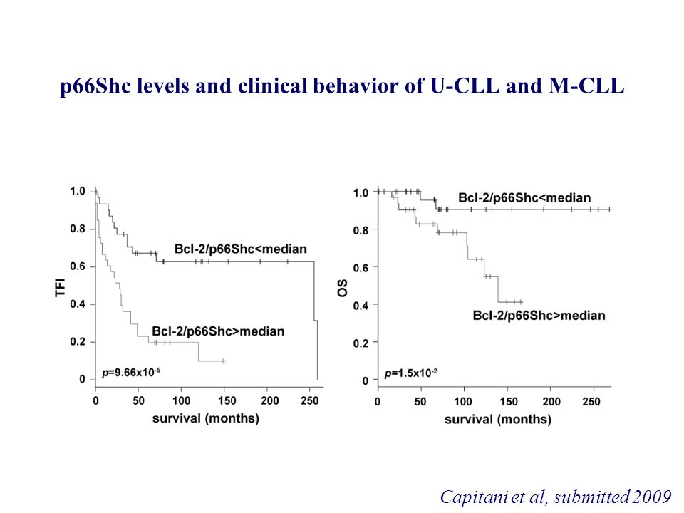 p66Shc levels and clinical behavior of U-CLL and M-CLL