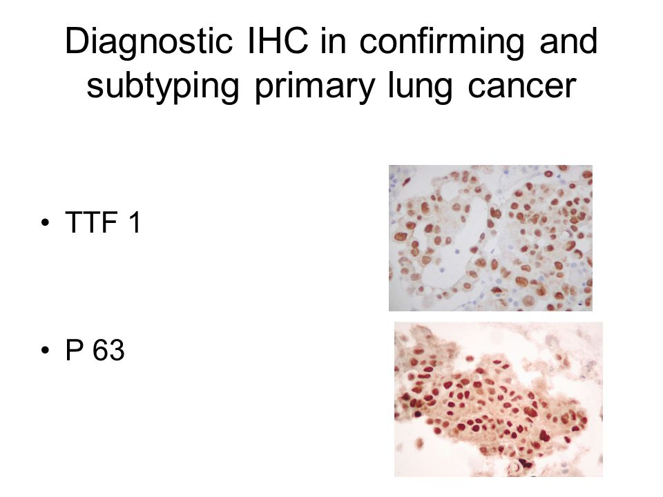 Diagnostic IHC in confirming and subtyping primary lung cancer