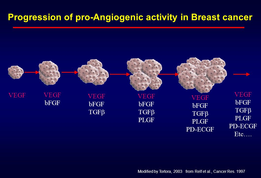 Progression of pro-Angiogenic activity in Breast cancer