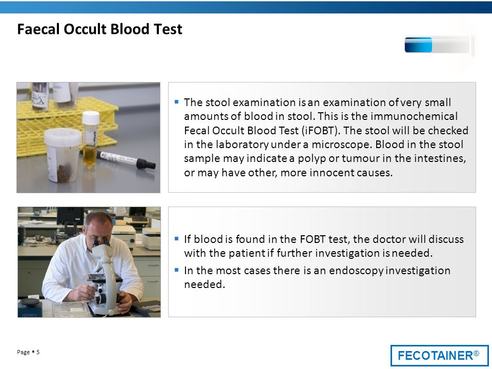 Faecal Occult Blood Test