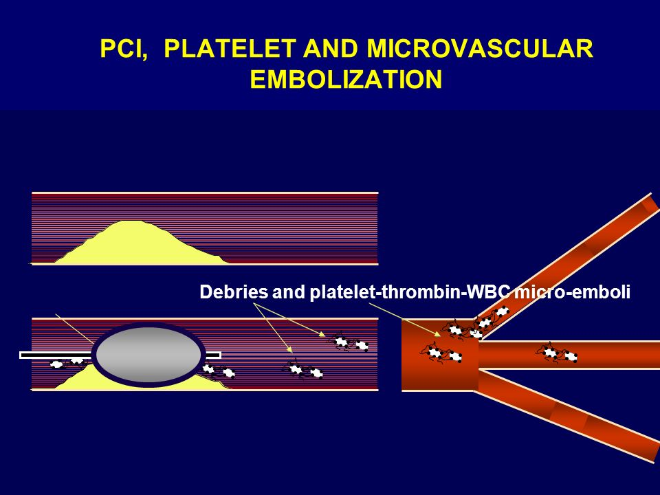 PCI, PLATELET AND MICROVASCULAR EMBOLIZATION