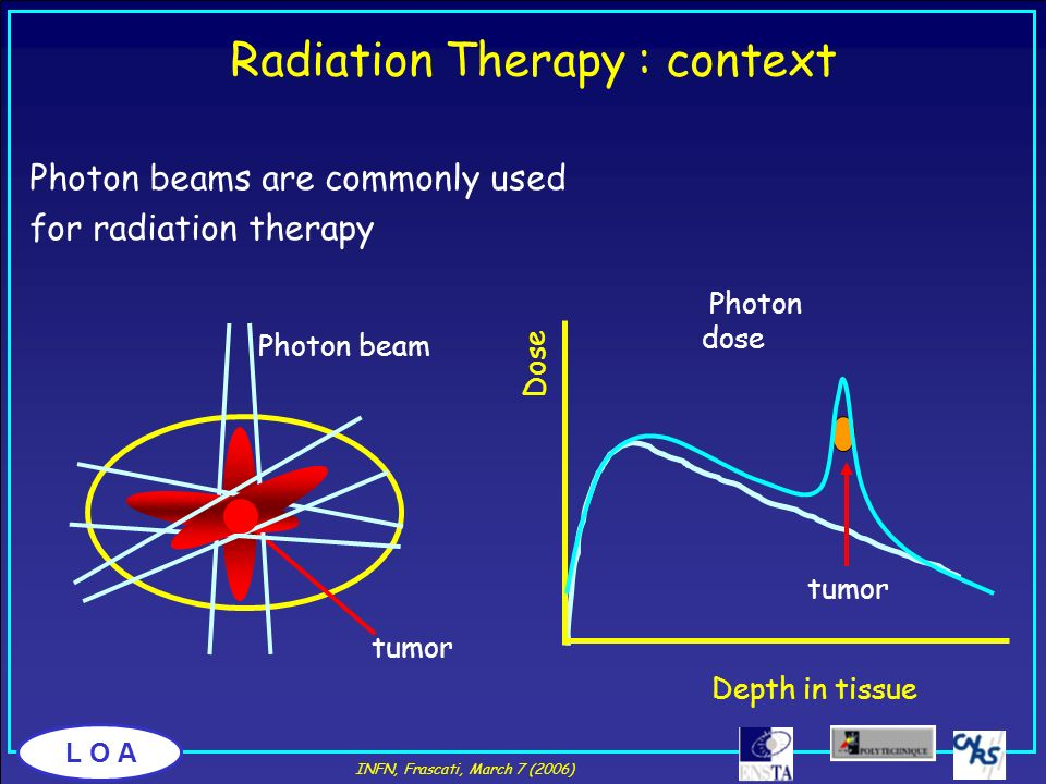 Radiation Therapy : context