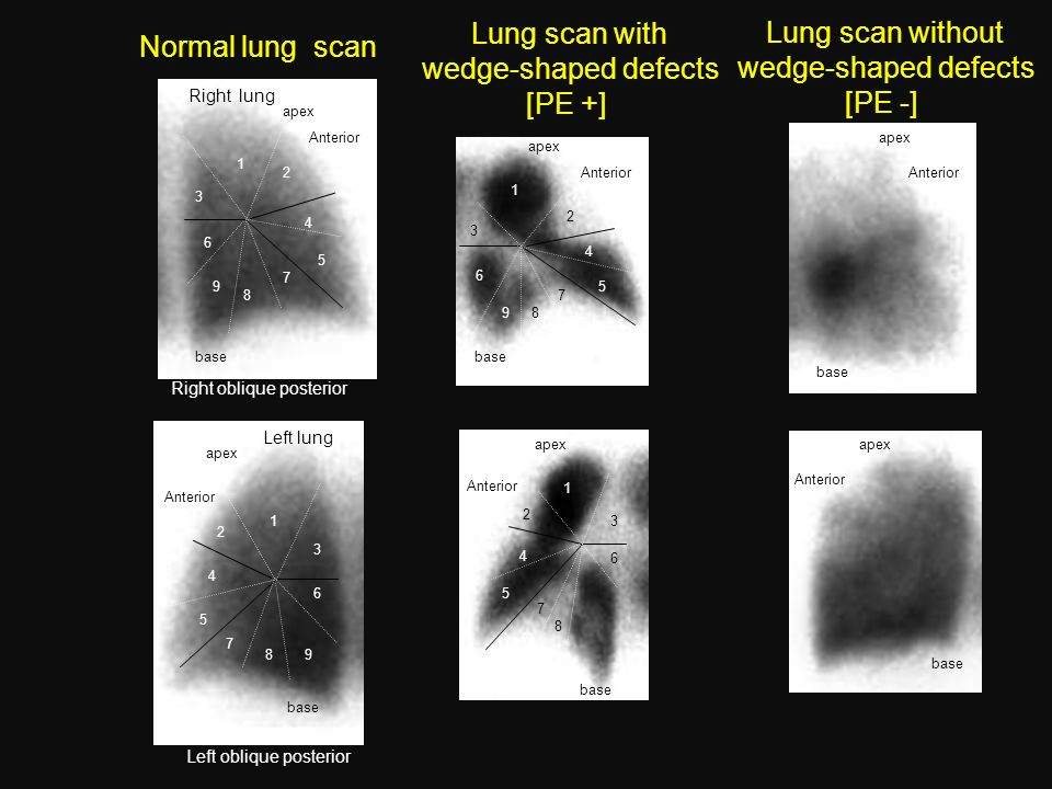 Lung scan with Lung scan without Normal lung scan wedge-shaped defects