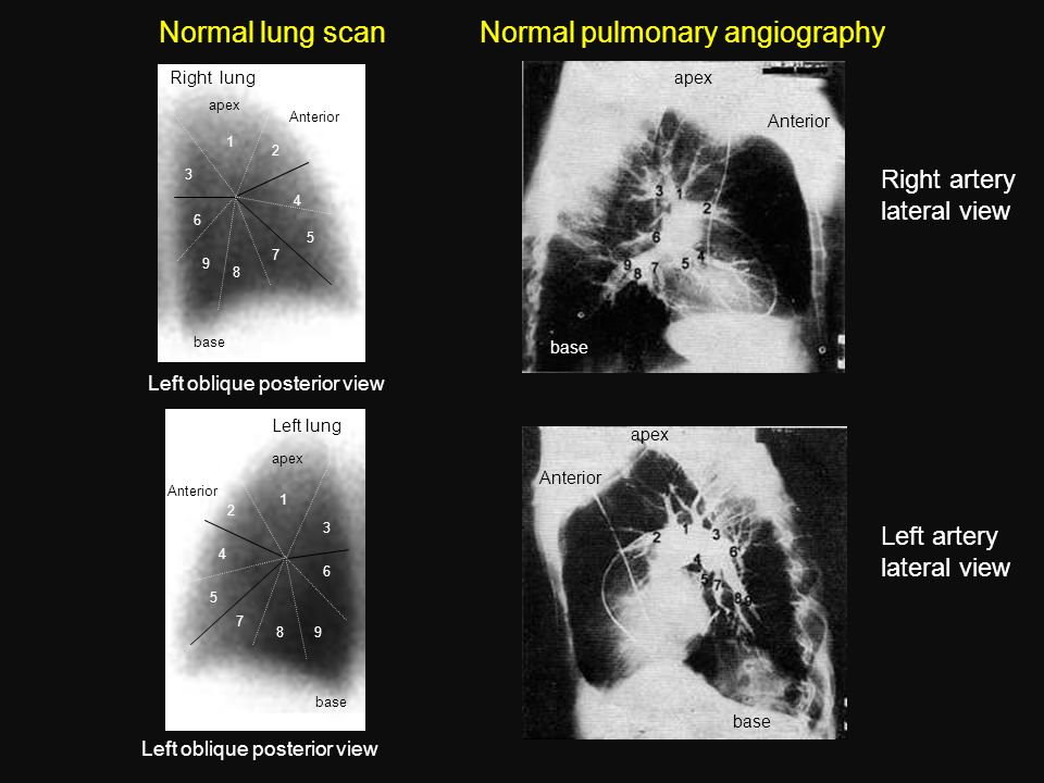 Normal pulmonary angiography