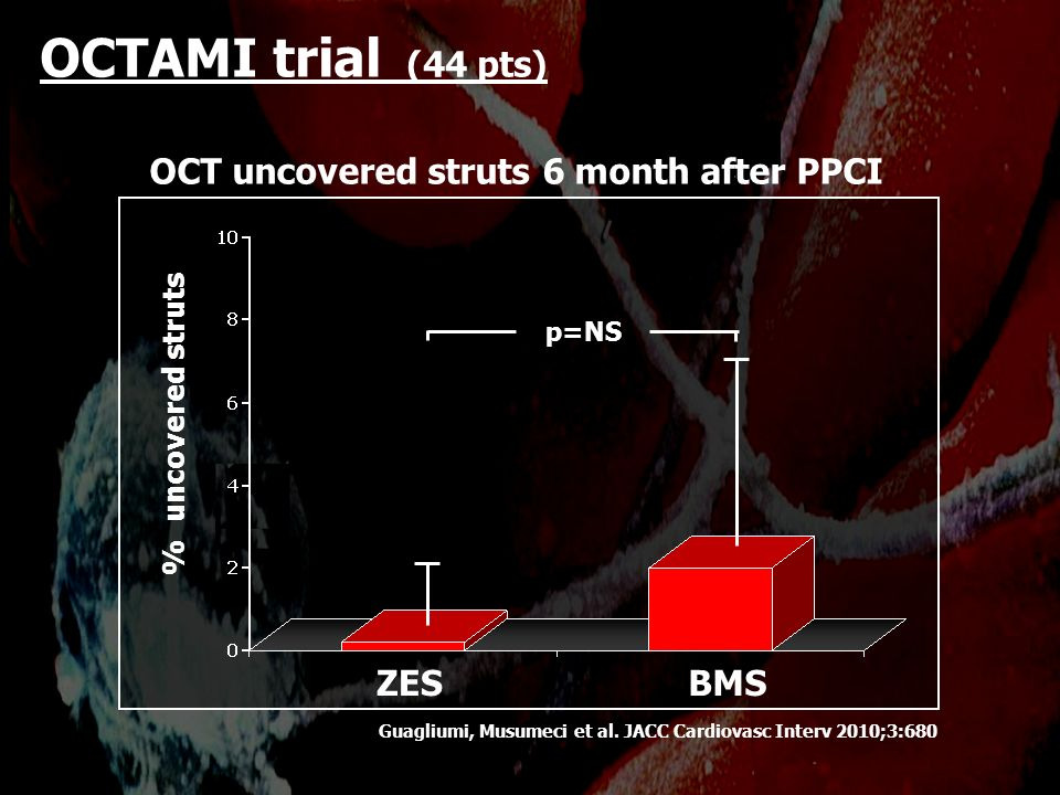 OCTAMI trial (44 pts) OCT uncovered struts 6 month after PPCI ZES BMS