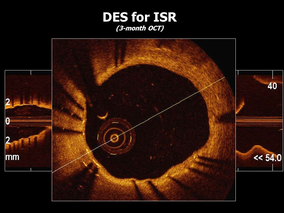 DES for ISR (3-month OCT)