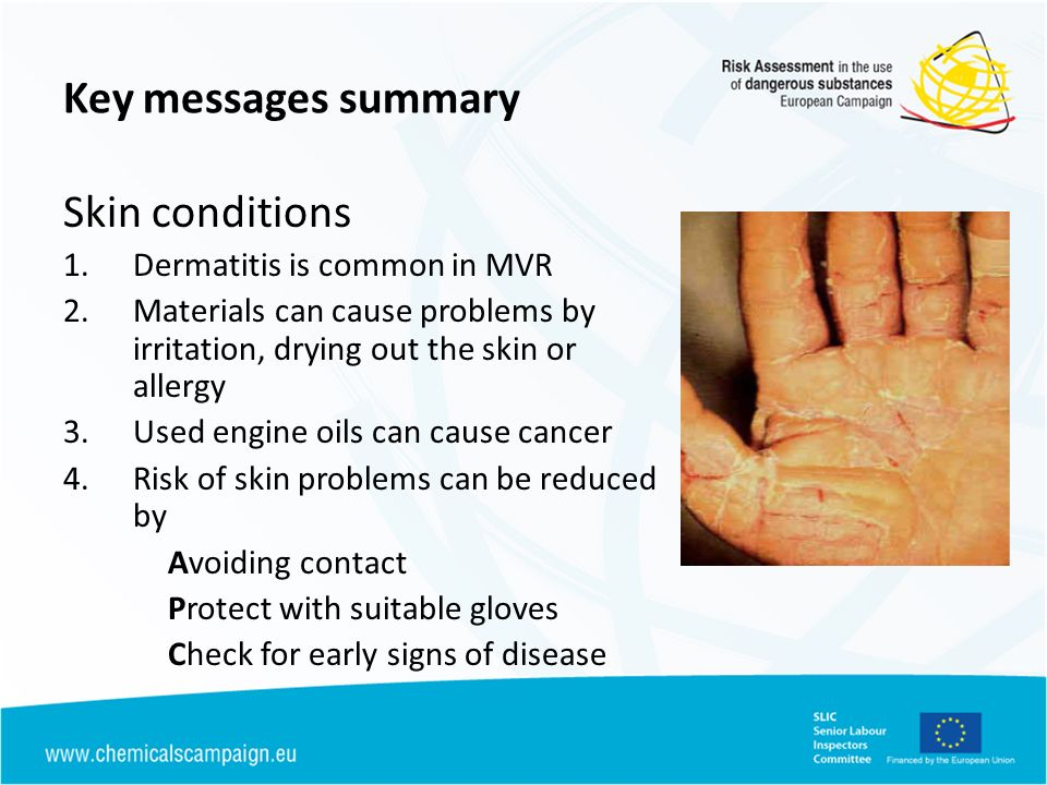 Key messages summary Skin conditions Dermatitis is common in MVR