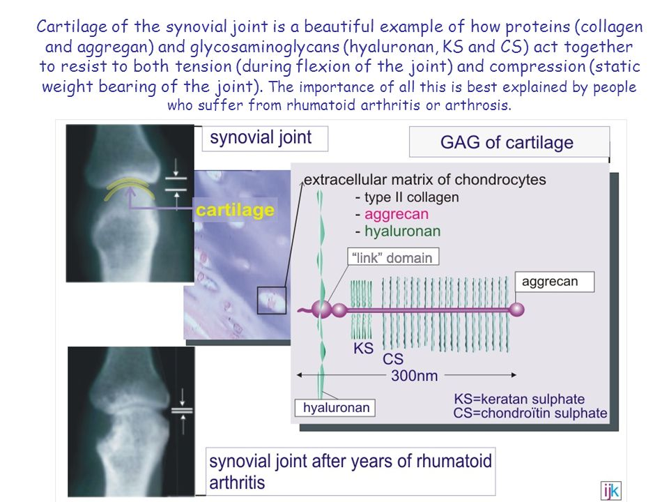 Cartilage of the synovial joint is a beautiful example of how proteins (collagen and aggregan) and glycosaminoglycans (hyaluronan, KS and CS) act together to resist to both tension (during flexion of the joint) and compression (static weight bearing of the joint).