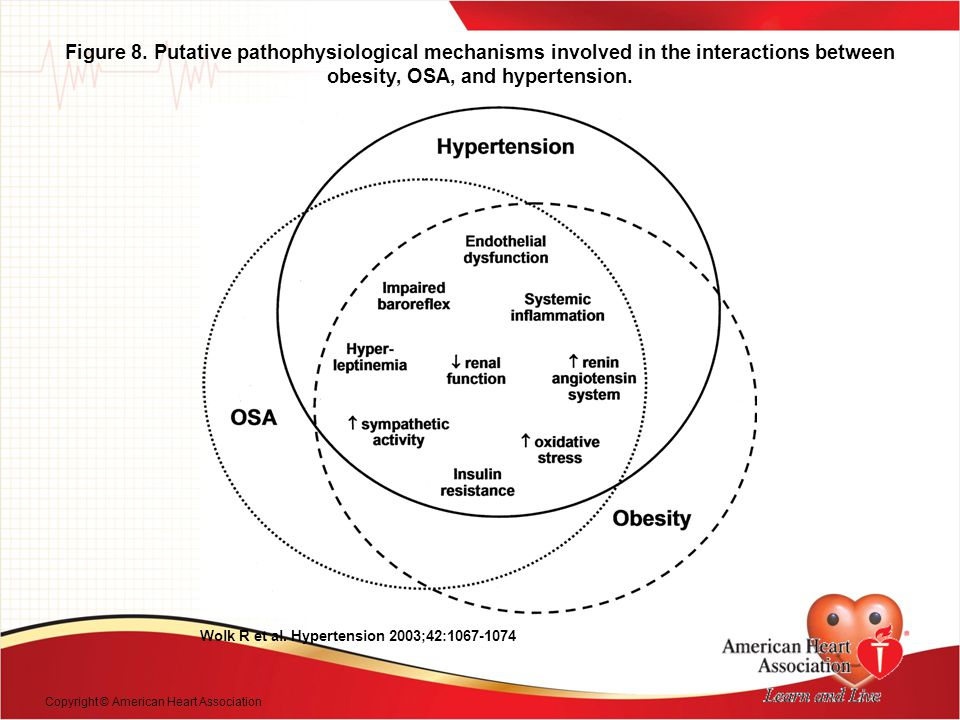 Figure 8. Putative pathophysiological mechanisms involved in the interactions between obesity, OSA, and hypertension.