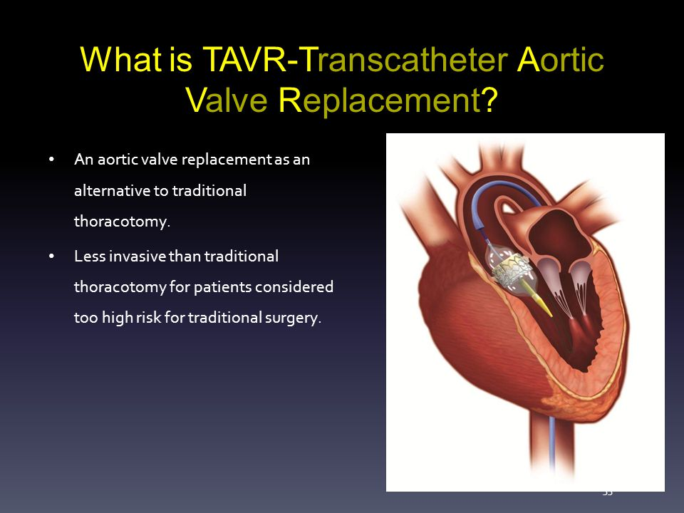 Severe Aortic Stenosis And TAVR Ppt Video Online Download