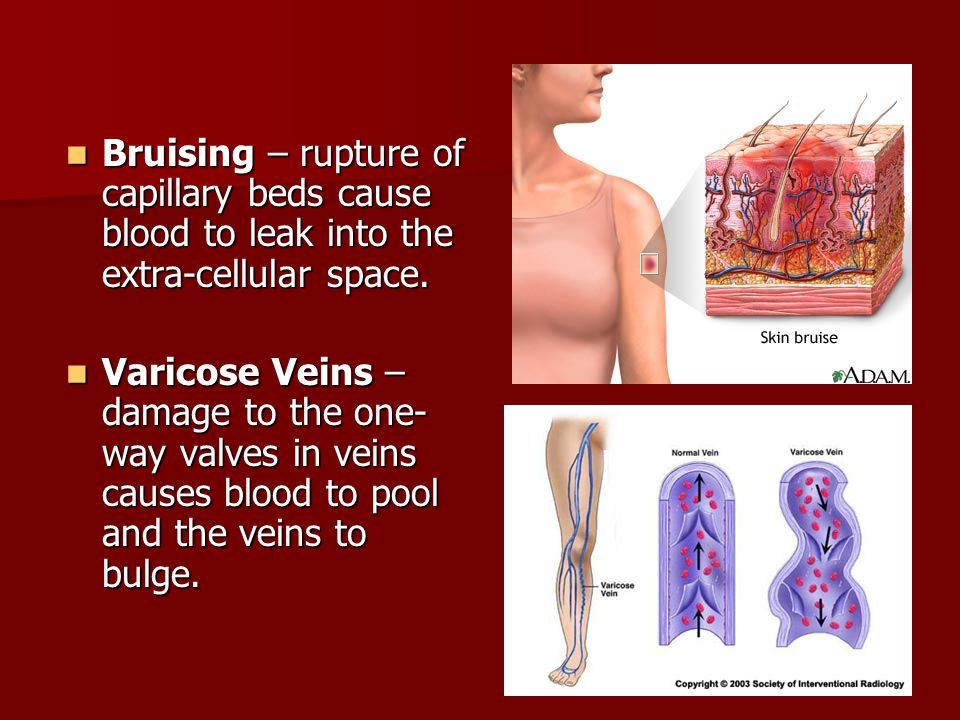 Heart & Circulation  - ppt download