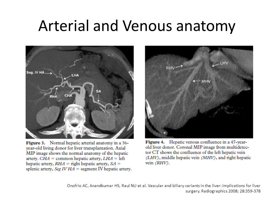 A Reinders Department of Radiology March ppt video online download