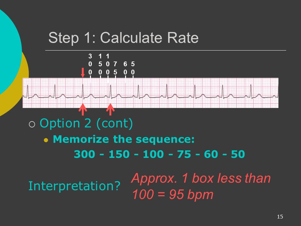 Step 1: Calculate Rate Approx. 1 box less than 100 = 95 bpm