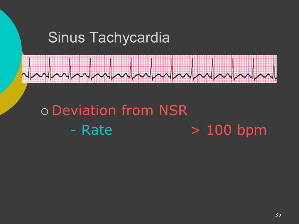 Sinus Tachycardia Deviation from NSR - Rate > 100 bpm