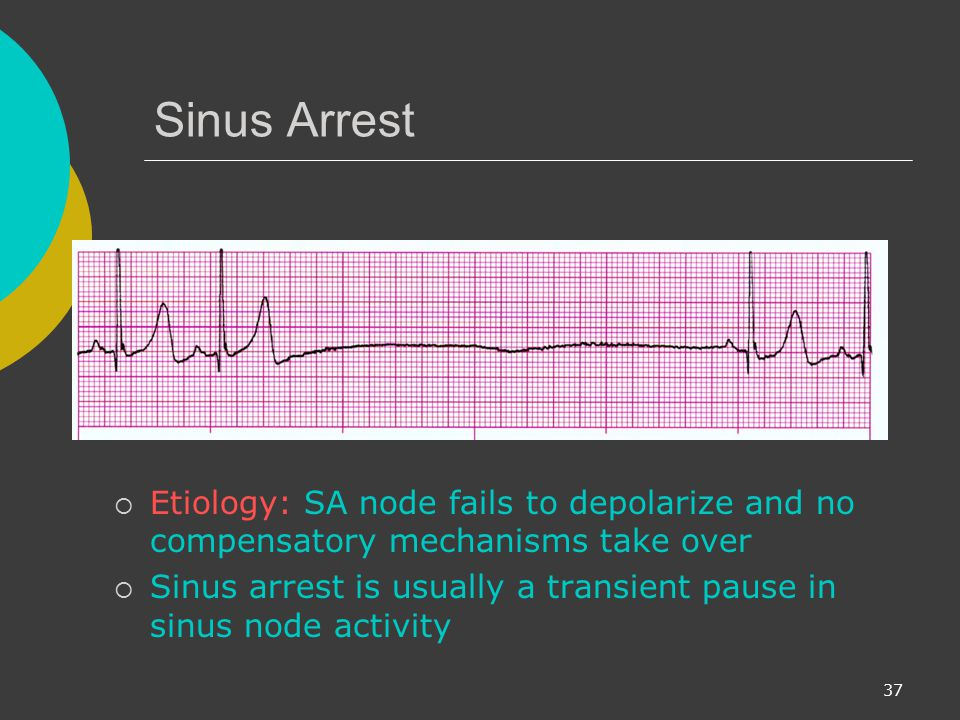 Sinus Arrest Etiology: SA node fails to depolarize and no compensatory mechanisms take over.