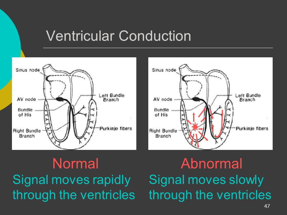 Ventricular Conduction