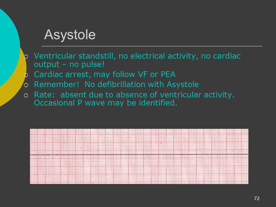 Asystole Ventricular standstill, no electrical activity, no cardiac output – no pulse! Cardiac arrest, may follow VF or PEA.