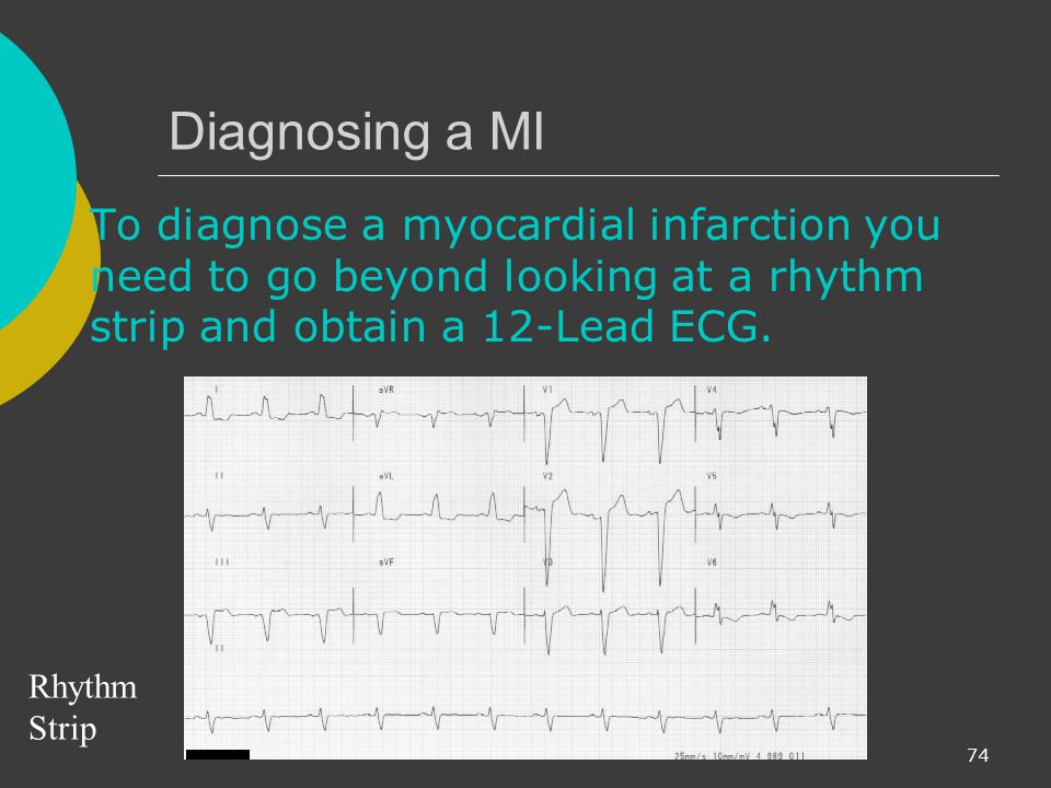 Diagnosing a MI To diagnose a myocardial infarction you need to go beyond looking at a rhythm strip and obtain a 12-Lead ECG.