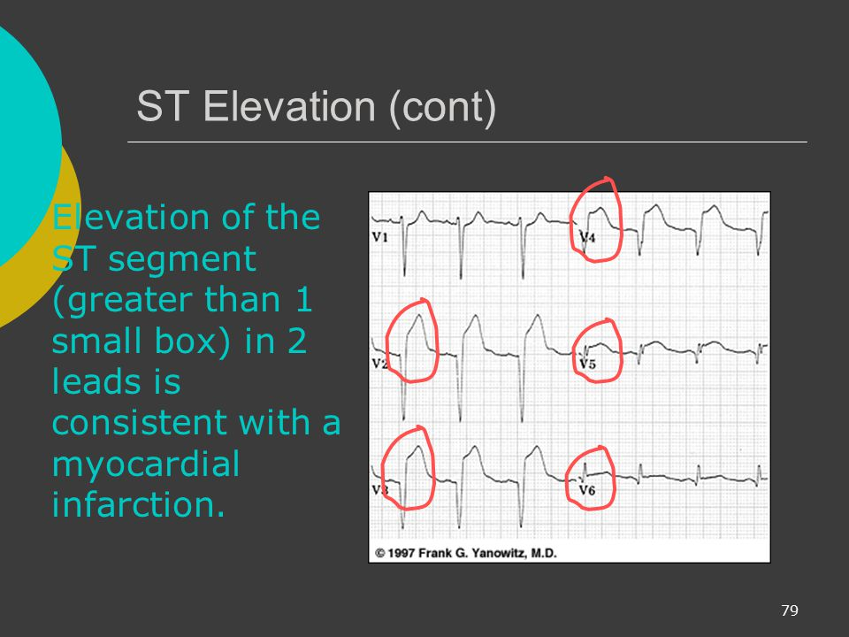 ST Elevation (cont) Elevation of the ST segment (greater than 1 small box) in 2 leads is consistent with a myocardial infarction.