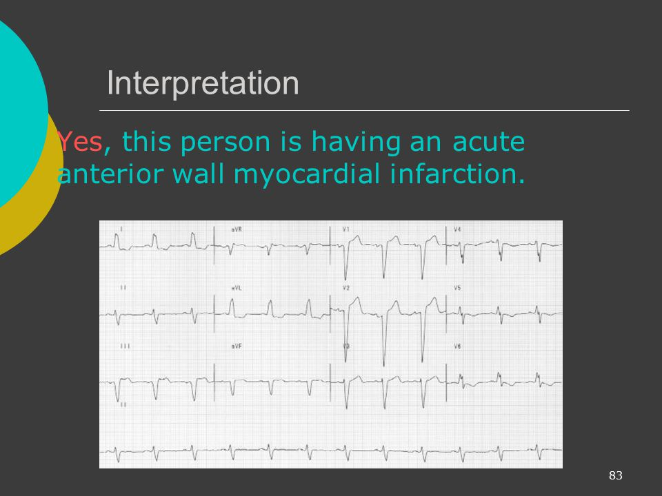 Interpretation Yes, this person is having an acute anterior wall myocardial infarction.