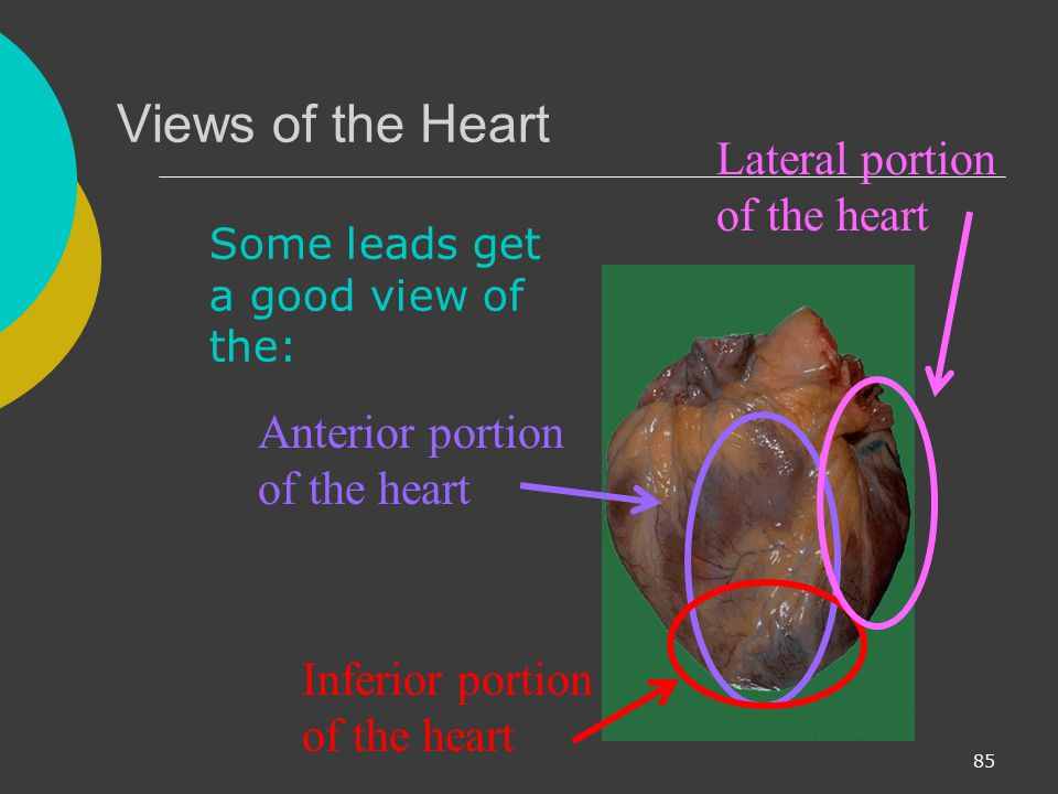 Views of the Heart Lateral portion of the heart