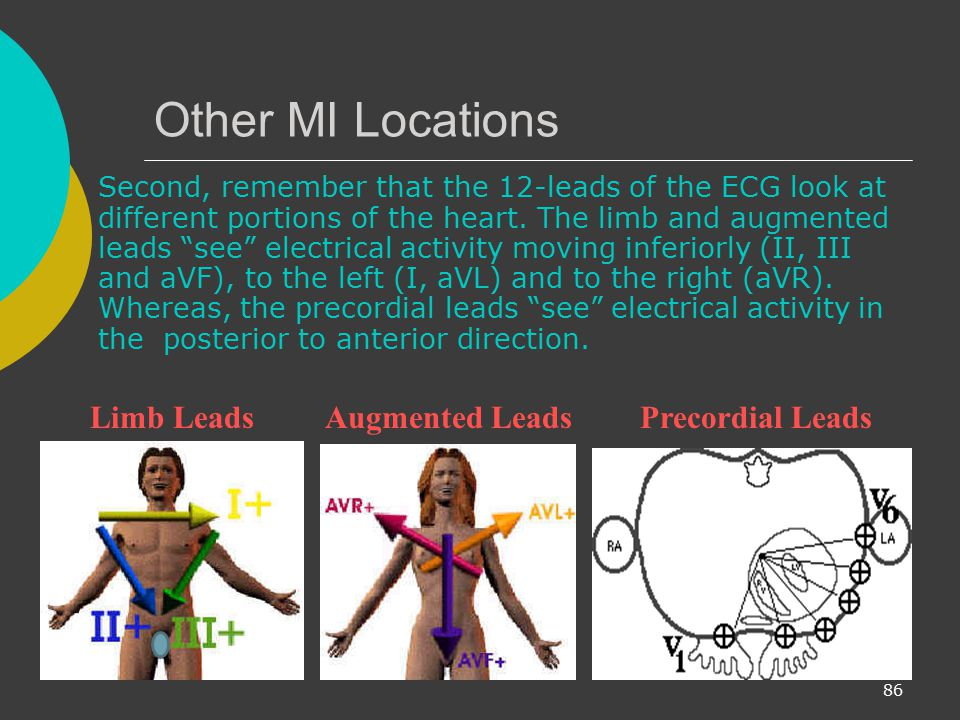 Other MI Locations Limb Leads Augmented Leads Precordial Leads